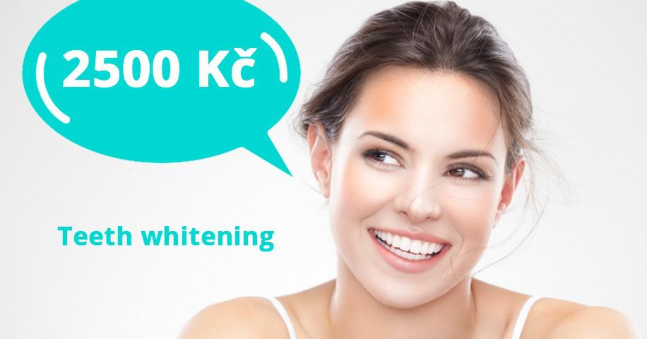 Teeth Whitening in Prague