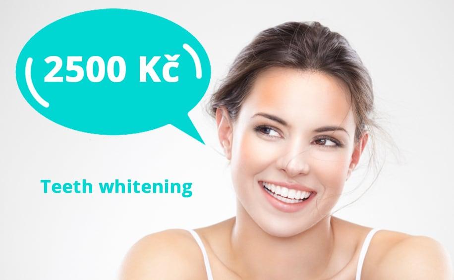 Teeth Whitening in Prague