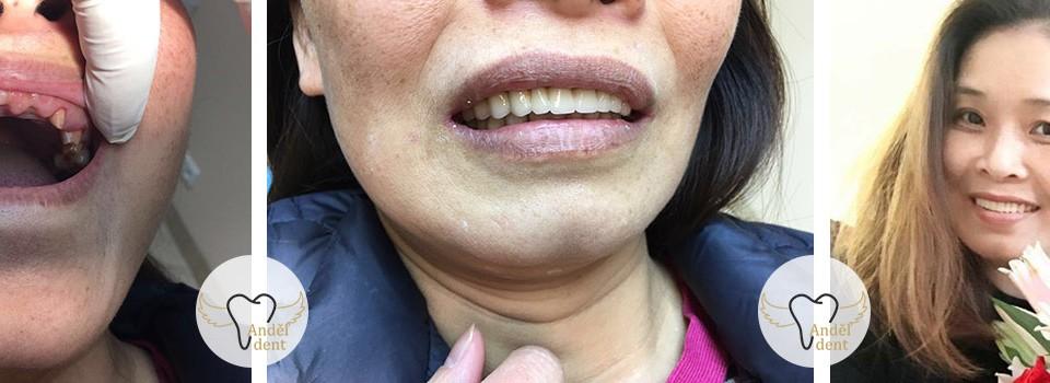 Restaurování zubů