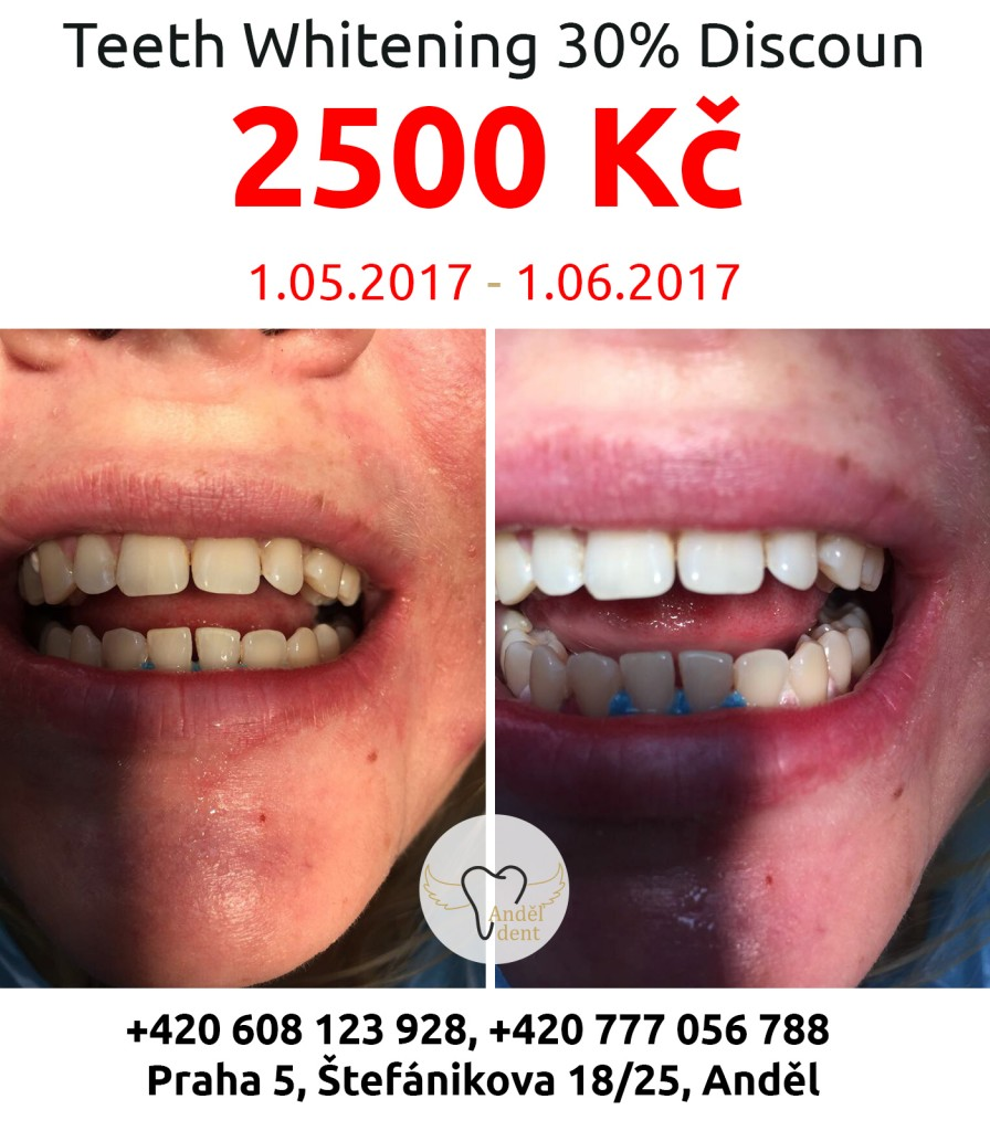 Teeth Whitening in Prague 30% Discoun