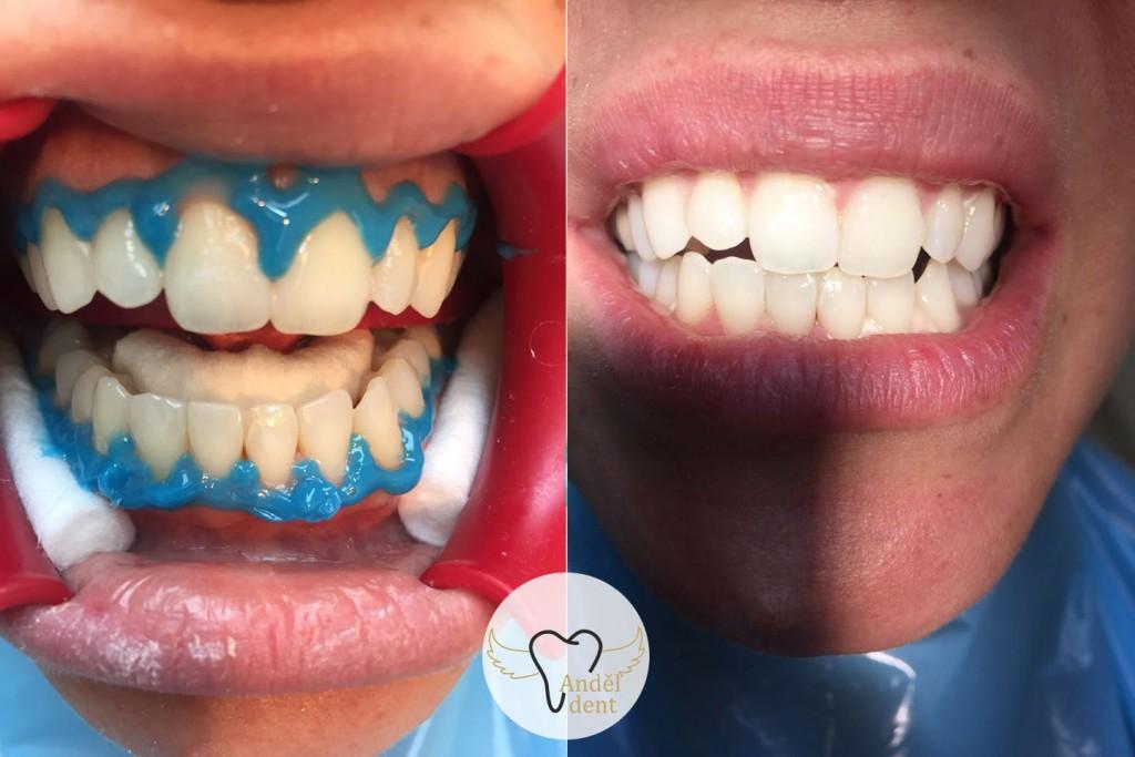 Cosmetic dentistry in Prague