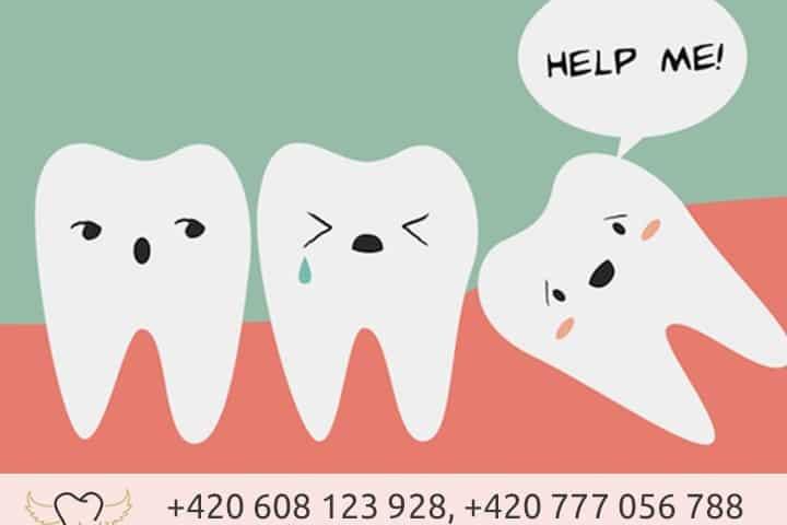 Trhání zubů moudrosti