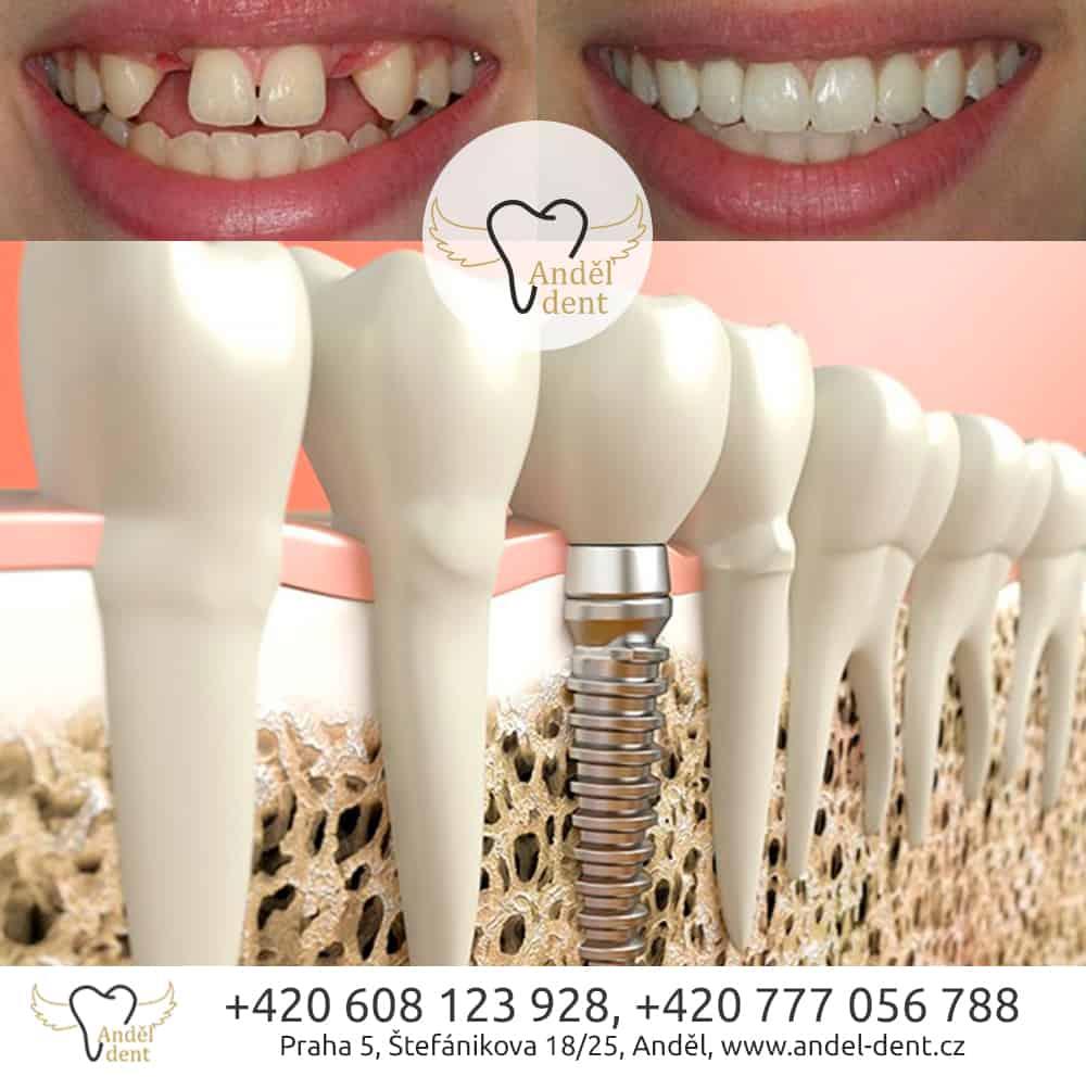 Implantace zubů