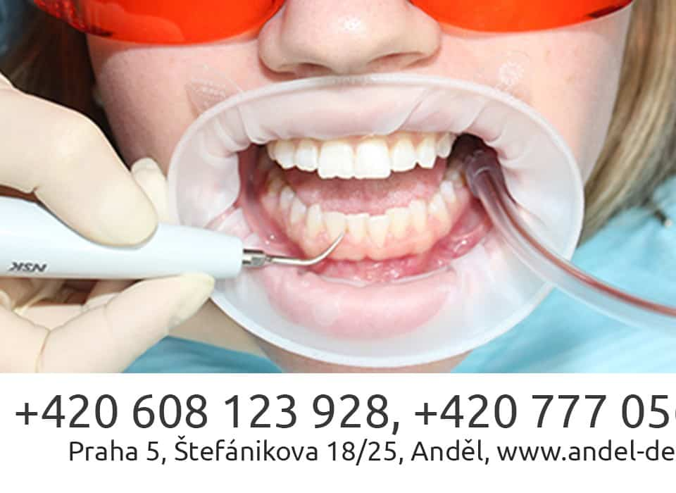 Airflow hygiene treatment in Prague 1000 Kč! Only 16.05-30.06