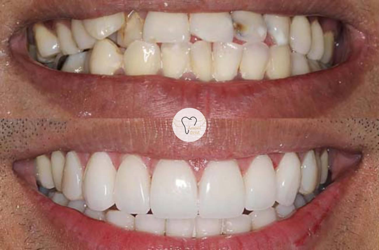 Zubní keramické fazety
