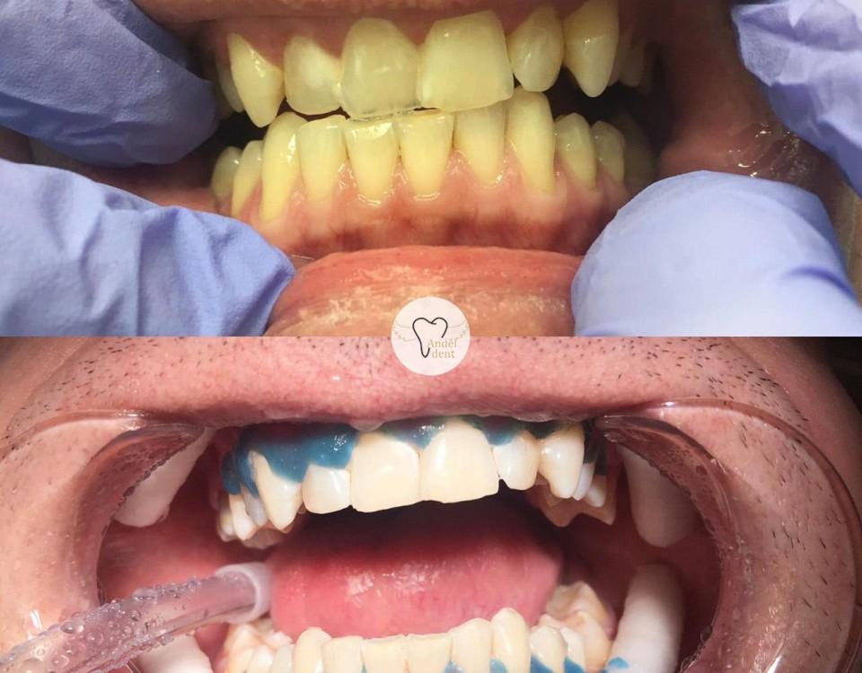 Bělení zubů Praha 5
